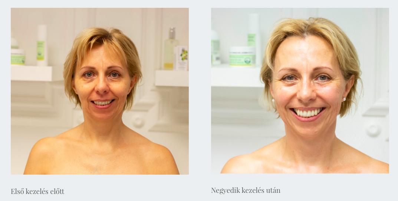 naturális arcplasztika kezelés